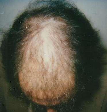 Hair-loss treatment start