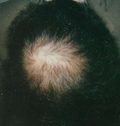 regrowth after treatment