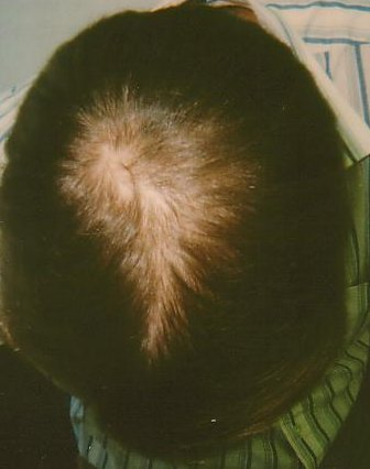 Hair-loss, after treatment